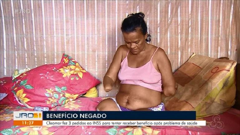 rondonia-mulher_sem_maos_e_pernas_tem_inss_negado